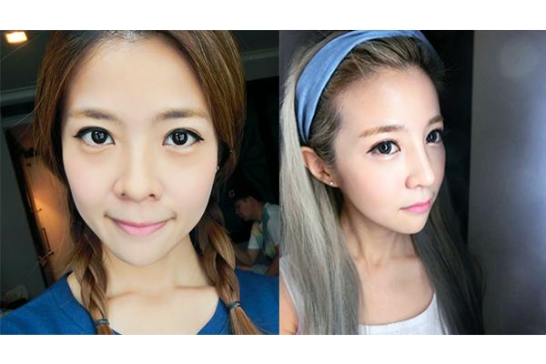 8 Singaporean Girls Share Their Plastic Surgery Experiences
