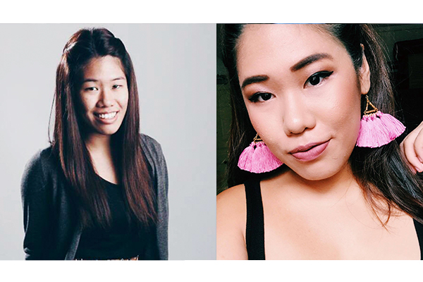 8 Singaporean Girls Share Their Plastic Surgery Experiences