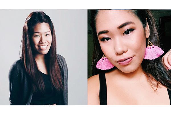 8 Singaporean Girls Share Their Plastic Surgery Experiences - ZULA sg
