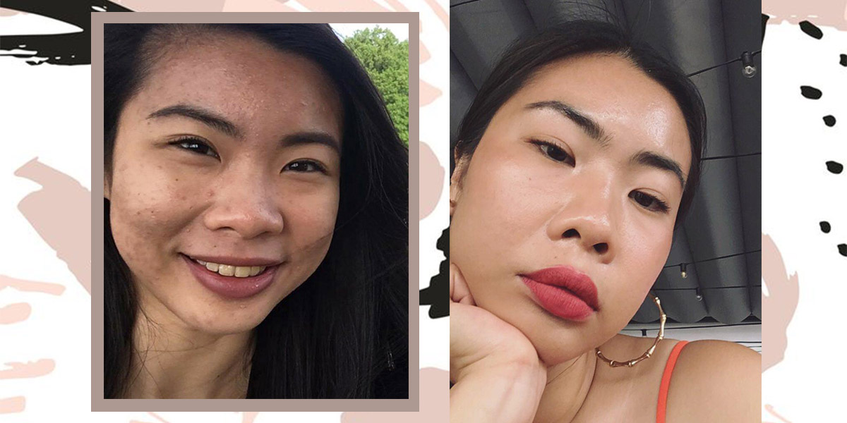 How I Cleared Acne With Under S$60 Skincare Products After Struggling For 7 Years