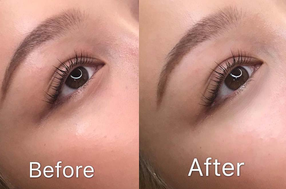 Permanent Under Eye Concealer Tattoo Is A Cosmetic Procedure That Lightens Dark Eye Circles Zula Sg Under eye concealer tattooing is very similar to other permanent makeup treatments, in that pigment is inked into the skin via a cosmetic tattoo gun. permanent under eye concealer tattoo is
