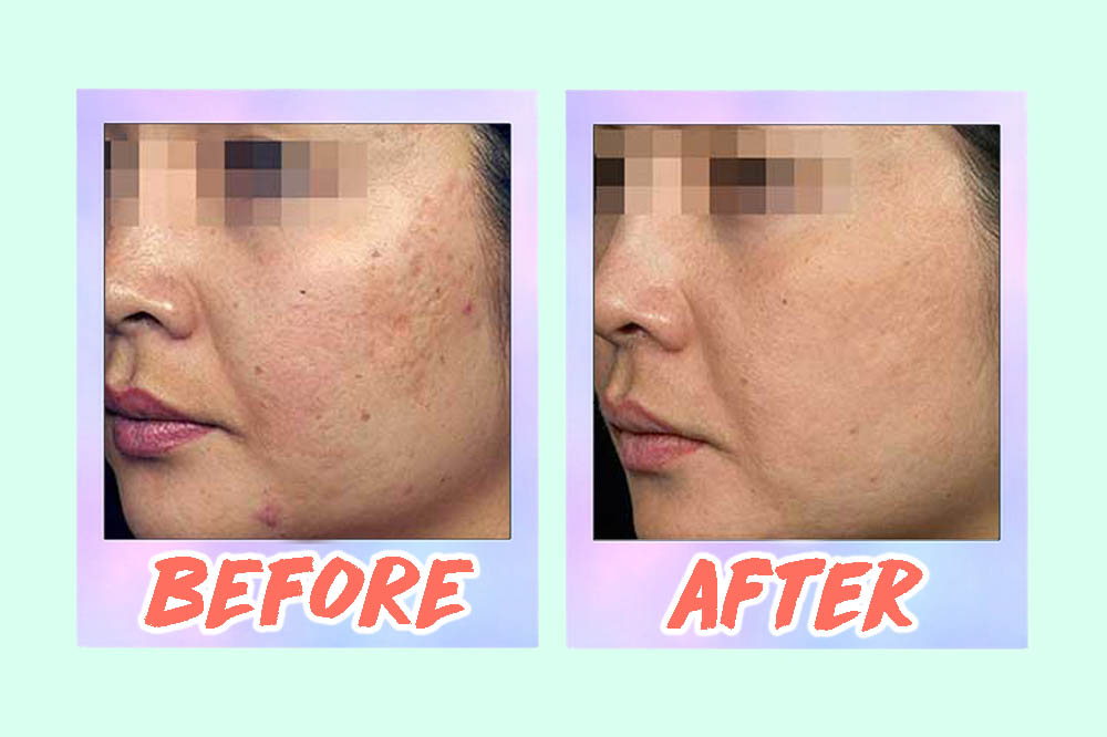 5 Acne Scar Laser Treatments In Singapore From S 88 That Work Including Before After Pics Zula Sg