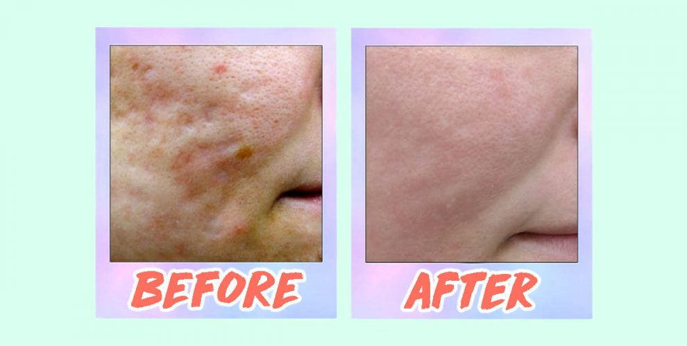 5 Acne Scar Laser Treatments In Singapore From S 88 That
