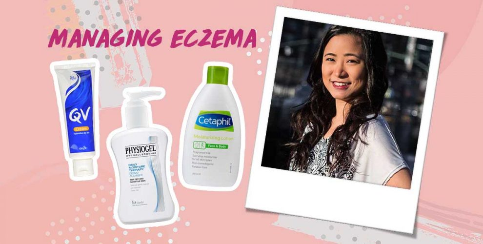 how to manage eczema