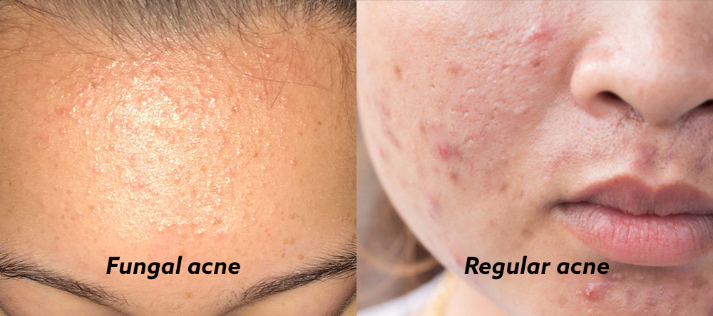 How To Identify Fungal Acne Treatments To Make It Disappear From Your Face Body Zula Sg