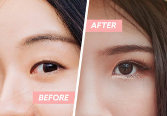double eyelid surgery cover image