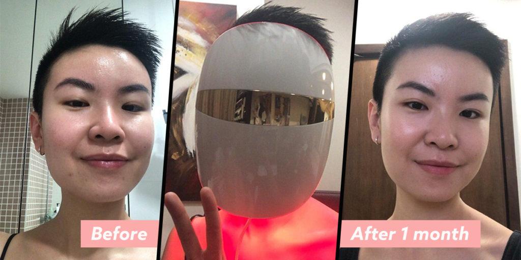 led mask cover image