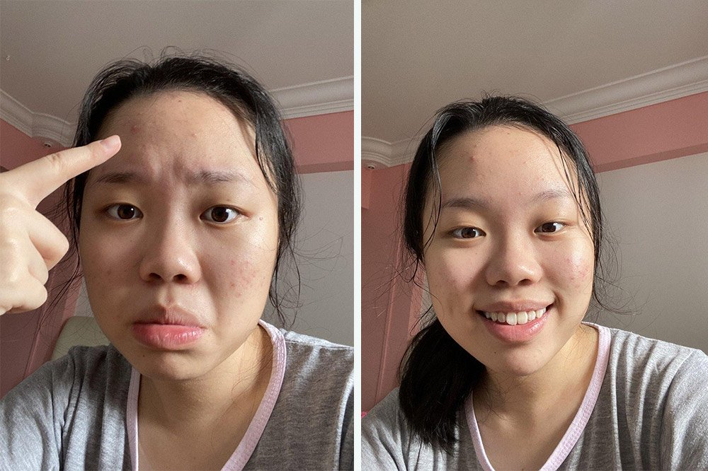 face mask before after penny