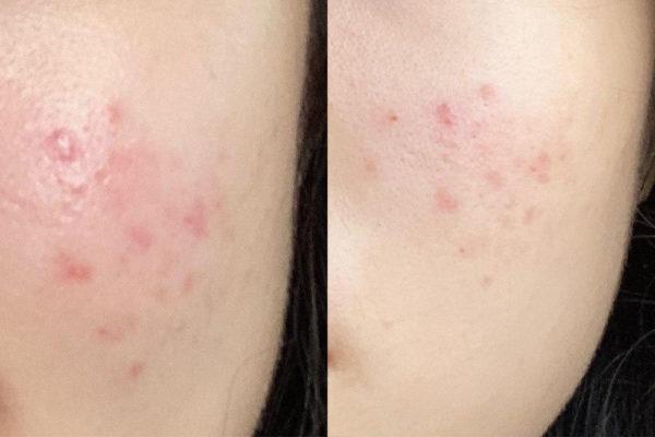korean skincare routine (24)