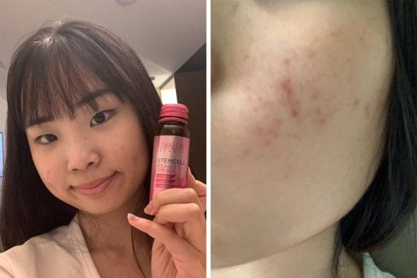AVALON Stemcell Beauty Drink Yihui day 1