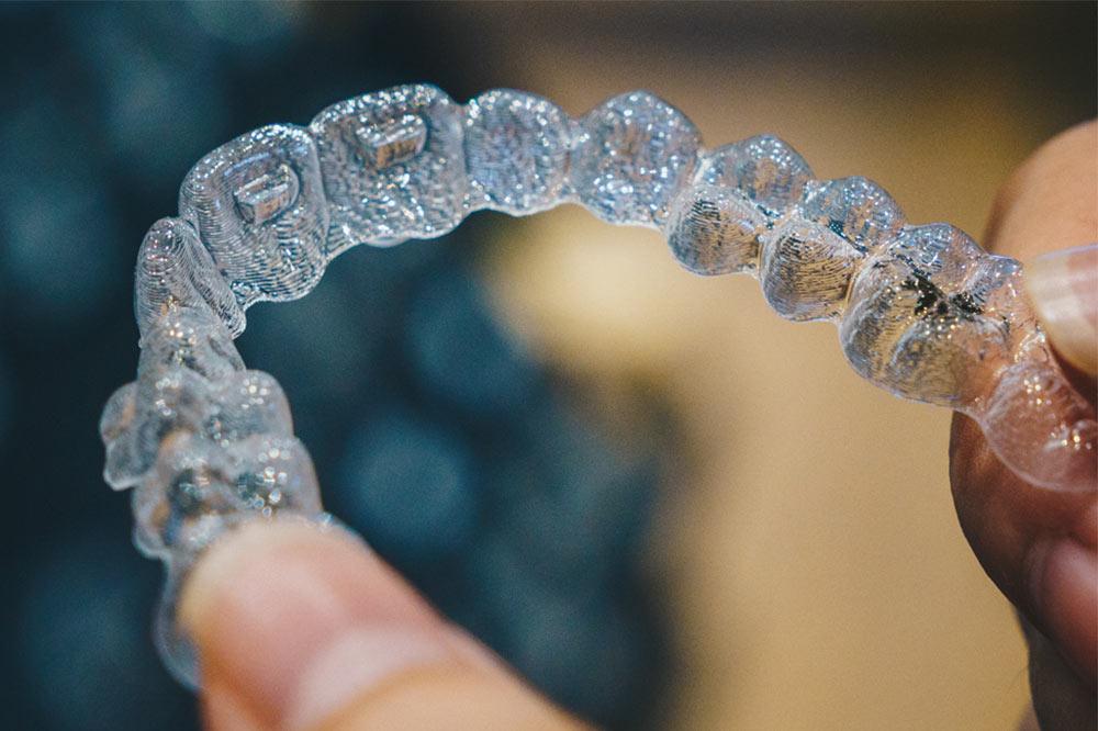 dental-mistakes-aligners