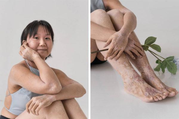 skin condition photoshoot jing rui tsw