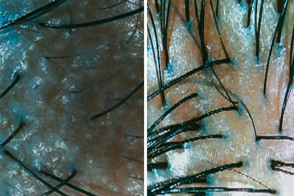 Scalp Detox Treatment Results